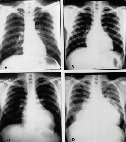 Chagas-heart-disease